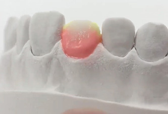 lab for dental crown