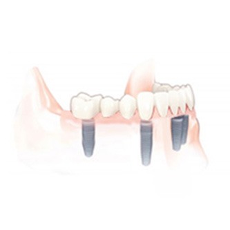 full bridge dental implants