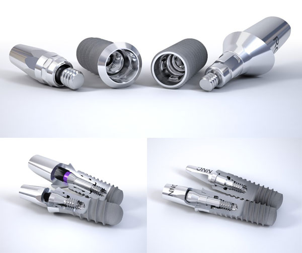 dental implants system