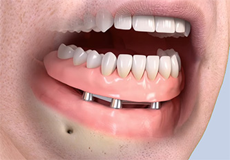 Full Mouth Dental Implants - All-on-4 Specialization Implant Center