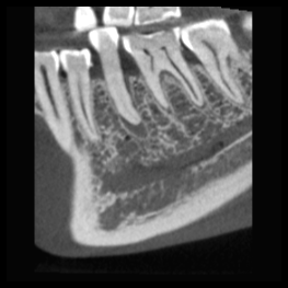 3D CT Scan Normal resolution
