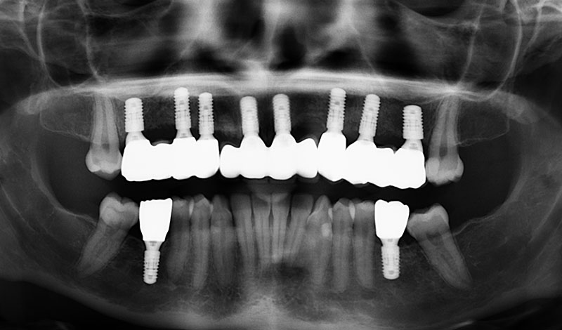 Tooth Implant Bridges