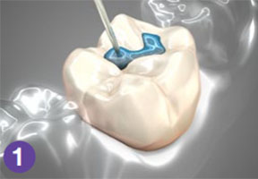 teeth sealants
