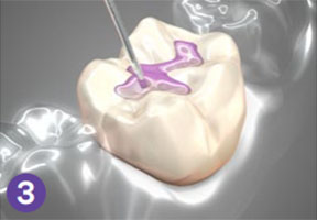 dental sealant treatment