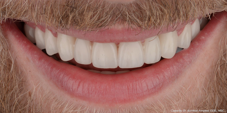 cases cosmetic dental