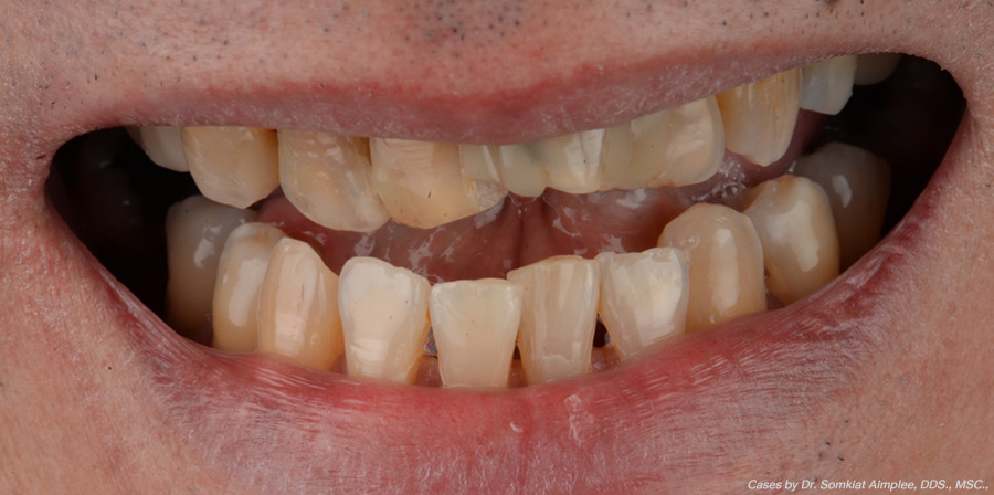 dental crowns cases before