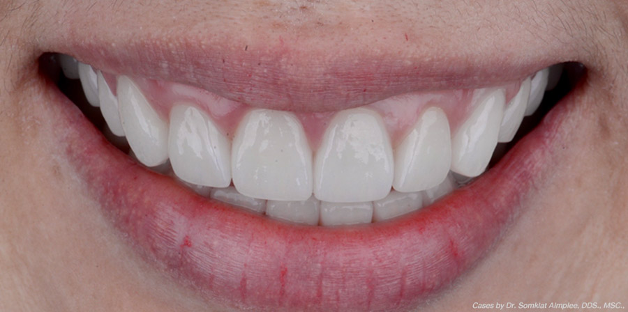 cases crowns veneers