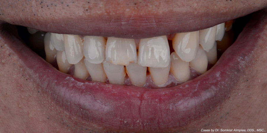 before crowns cases