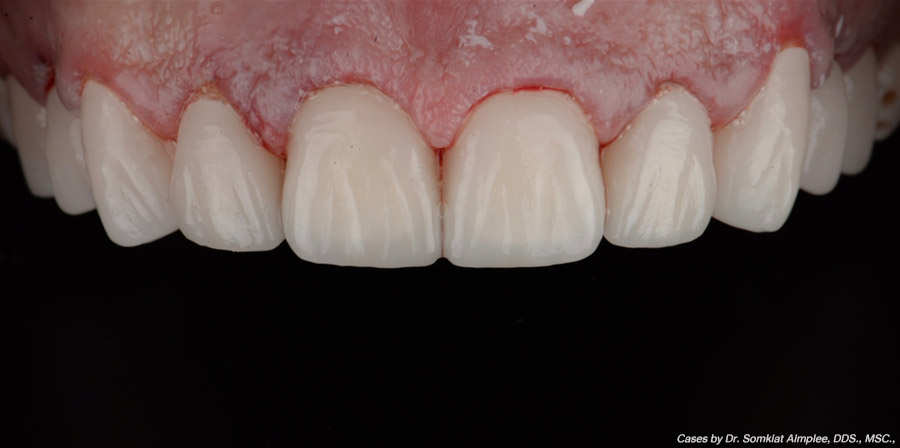 crowns cases after