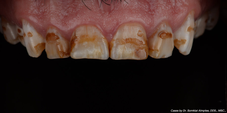 crowns cases before