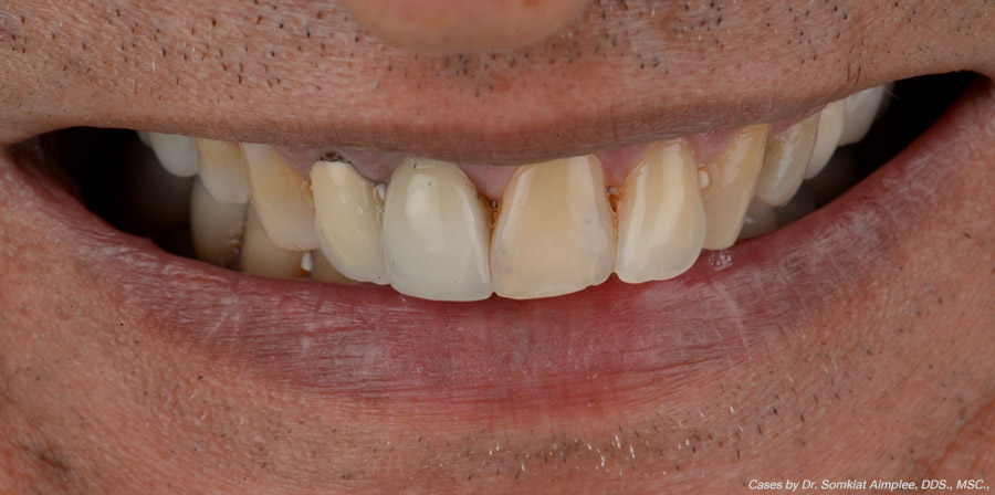 cases smile makeover before